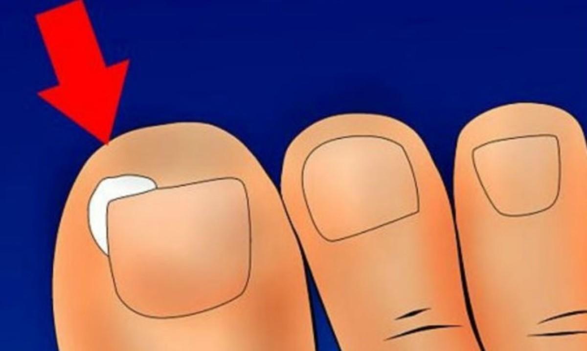 Νύχι που μπαίνει στο δέρμα: Αίτια, επιπτώσεις και αντιμετώπιση στο σπίτι [vid] | Newsit.gr
