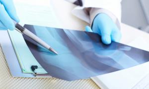 """Πολλαπλό μυέλωμα – Συμπτώματα: Ο ύπουλος καρκίνος που """"τρώει"""" τα οστά [vid]"""