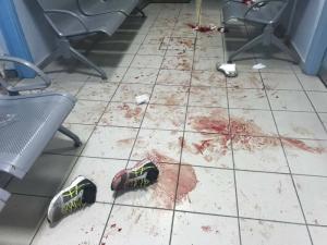 Λέσβος: Άγρια συμπλοκή μεταναστών! 1 νεκρός – 3 τραυματιες