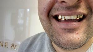 Στη φυλακή δημοτικός σύμβουλος που πρότεινε να βγάλουν τα χρυσά δόντια των Ρομά για… χρηματοδότηση!