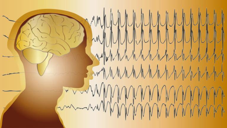 Επιληψία: Αίτια, συμπτώματα, παράγοντες κινδύνου και σωστή αντιμετώπιση [vid] | Newsit.gr