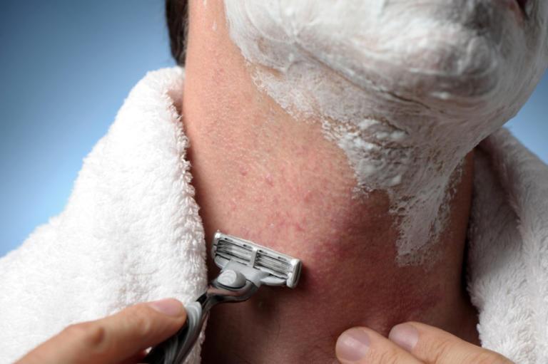 Ξύρισμα – Ερεθισμός: 7 συμβουλές για να μην έχετε πρόβλημα από το ξυραφάκι | Newsit.gr
