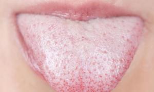 Τι μπορεί να είναι τα κόκκινα σημάδια στη γλώσσα – Όλες οι πιθανές ασθένειες