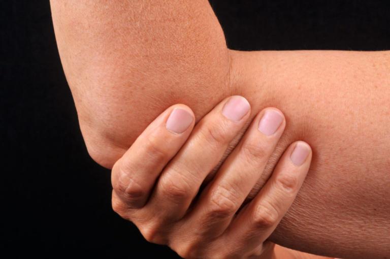 Ρευματοειδής αρθρίτιδα: Συμπτώματα και διατροφή – Όλα όσα πρέπει να ξέρετε [vids] | Newsit.gr
