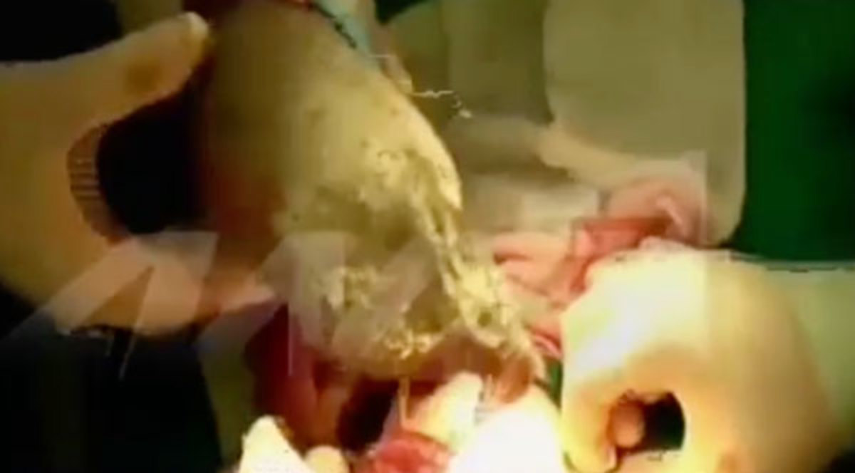 Video σοκ: Έβγαλαν από το στομάχι 8χρονης τεράστια μπάλα από μαλλιά