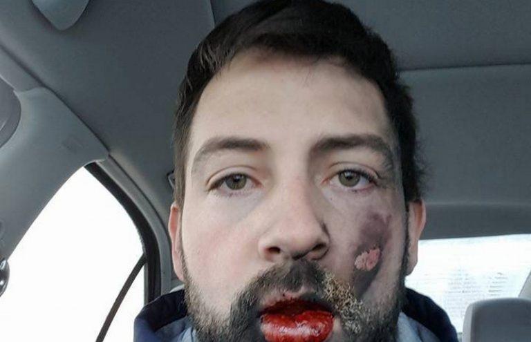 Ανατινάχτηκε το ηλεκτρονικό τσιγάρο στο στόμα του – Εγκαύματα και 7 σπασμένα δόντια [pics]