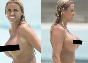 Katie Prince: Κολύμπησε topless και άφησε να φανούν τα σημάδια της τελευταία πλαστικής επέμβασης!