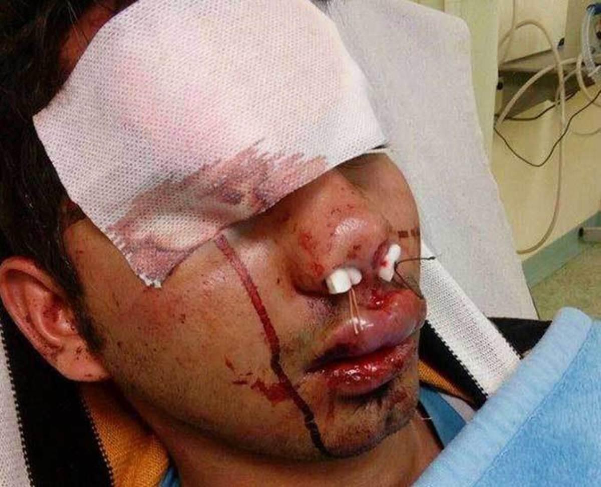 Ρατσιστικά τάγματα χτυπούν μετανάστες στον Ασπρόπυργο! [pics]
