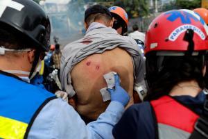 Μυρίζει θάνατο στη Βενεζουέλα ενόψει των εκλογών! Εικόνες πολέμου [pics]