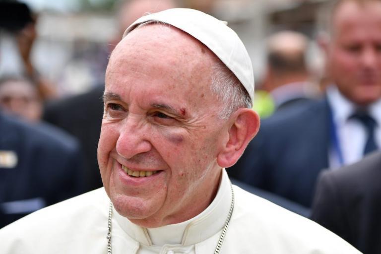 Τραυματίστηκε στο κεφάλι ο Πάπας Φραγκίσκος! Με αίματα κυκλοφορούσε στην Καρταχένα [pics, vid]