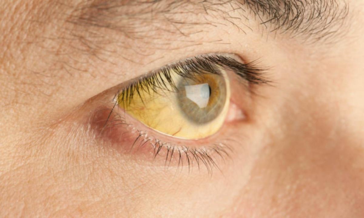 Κίτρινα μάτια: Τι σύμπτωμα είναι - Ποιοι πρέπει να προσέχουν
