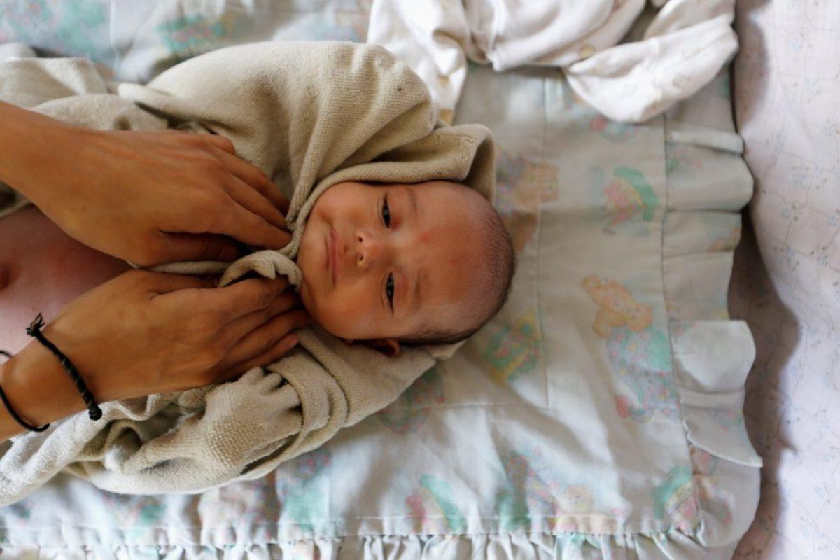 Το πιο τυχερό μωρό με σύνδρομο Down