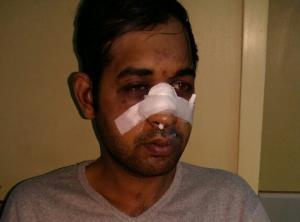 ΚΕΕΡΦΑ: Νέα δολοφονική επίθεση εναντίον μετανάστη στο Γαλάτσι [pics]