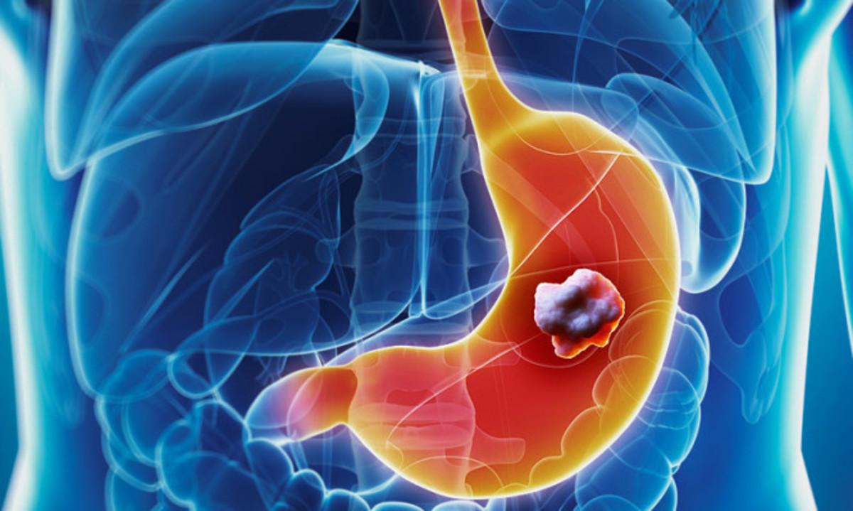 Καρκίνος του στομάχου: Τα απλά συμπτώματα που πρέπει να προσέχετε