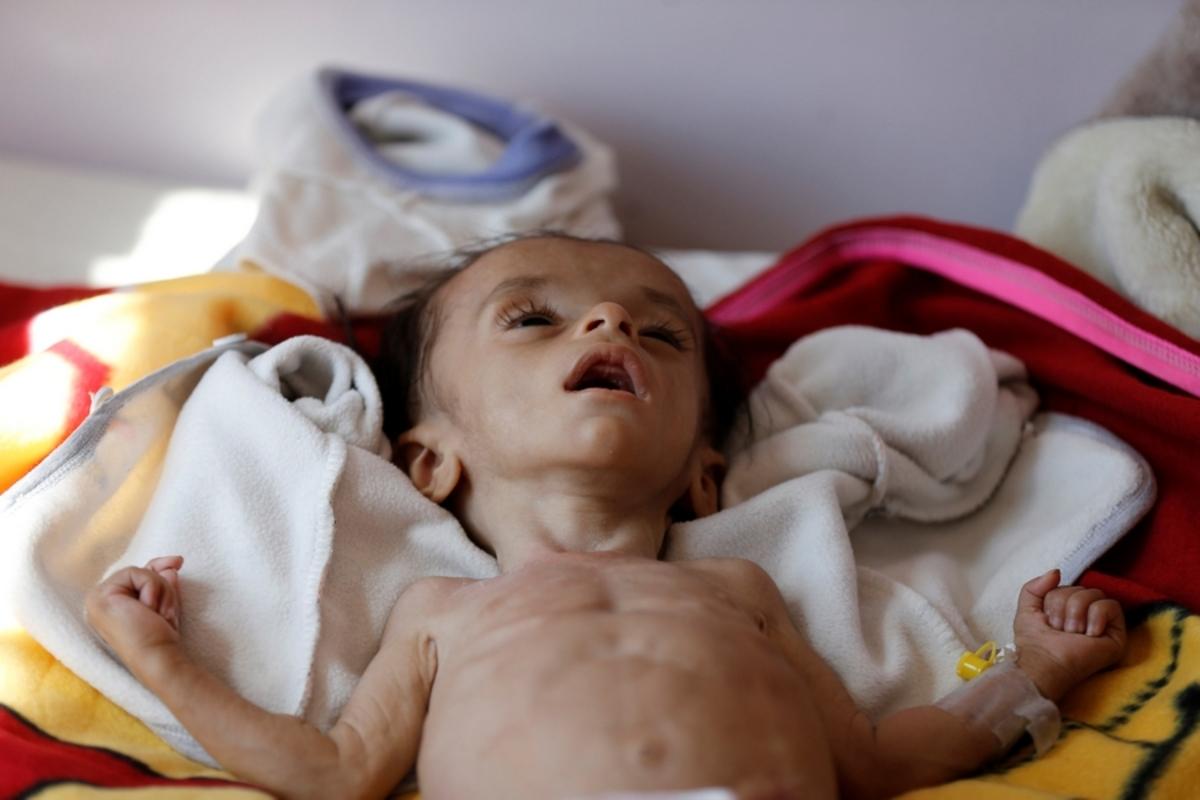 Κέντρο υποσιτισμού στην Υεμένη