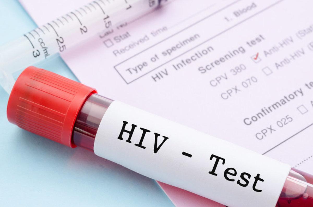 Λιγότερες οι διαγνώσεις του HIV στην Ελλάδα τα τελευταία χρόνια