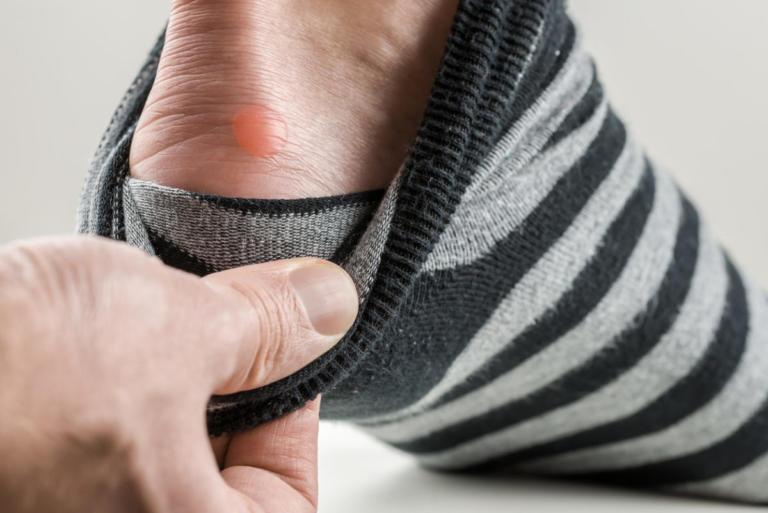 Φουσκάλες στα πόδια: Τα λάθη που κάνετε και τις επιδεινώνουν