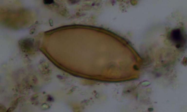 Σπουδαία ανακάλυψη στην Τζιά: Ανακαλύφθηκαν αρχαία κόπρανα με τα παρασιτικά σκουλήκια του εντέρου που περιέγραφε ο Ιπποκράτης