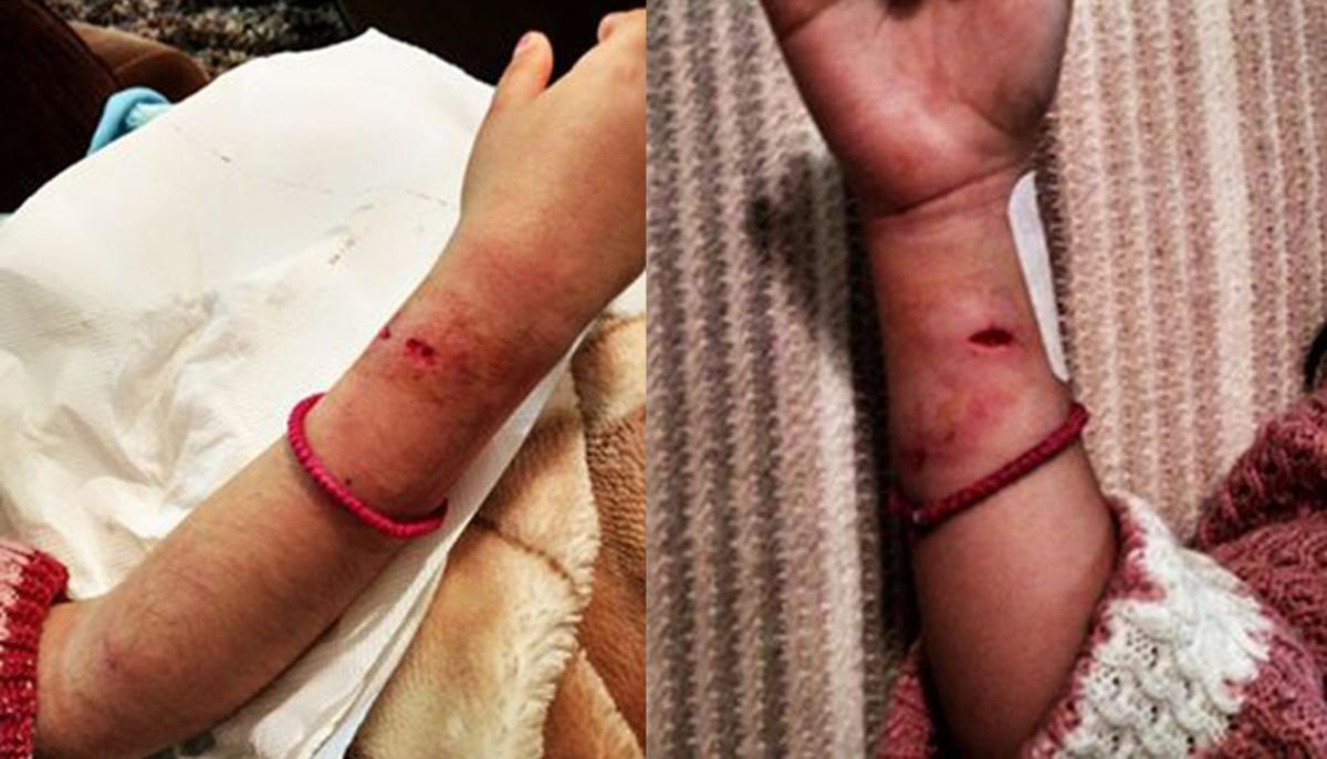 Μυτιλήνη: Αδέσποτα σκυλιά επιτέθηκαν σε 7χρονο κορίτσι – Οι φωτογραφίες του τραυματισμού της [pics]