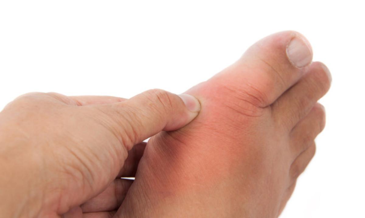 Ουρική αρθρίτιδα: Συμπτώματα, θεραπεία, διατροφή και όλα τα αίτια   Newsit.gr