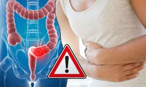 Καρκίνος του παχέος εντέρου: Το ΕΝΑ σύμπτωμα που απαγορεύεται να αγνοήσετε [vid]