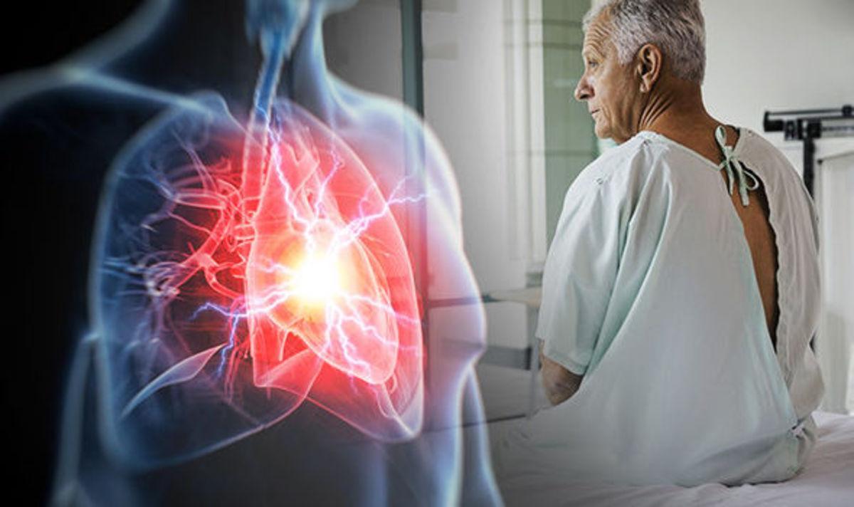 Καρδιακή προσβολή: Αυτό είναι το σύμπτωμα-κλειδί που ΔΕΝ είναι ο πόνος στο στήθος [vid] | Newsit.gr