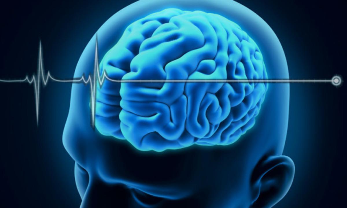 Τι σημαίνει όταν λένε ότι κάποιος είναι εγκεφαλικά νεκρός | Newsit.gr