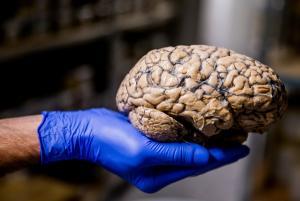 Πότε ο εγκέφαλός μας απέκτησε σφαιρικό σχήμα
