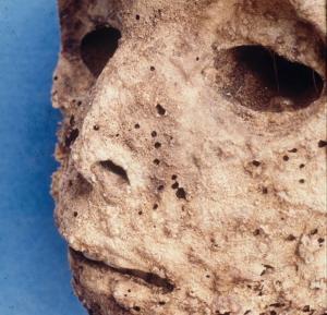 Βρήκαν ηπατίτιδα Β σε μούμια παιδιού από τον 16ο αιώνα [pic]