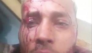 Βενεζουέλα: Ο καταζητούμενος Όσκαρ Πέρες που εναντιωνόταν στην κυβέρνηση Μαδούρο σκοτώθηκε σε επιχείρηση της αστυνομίας