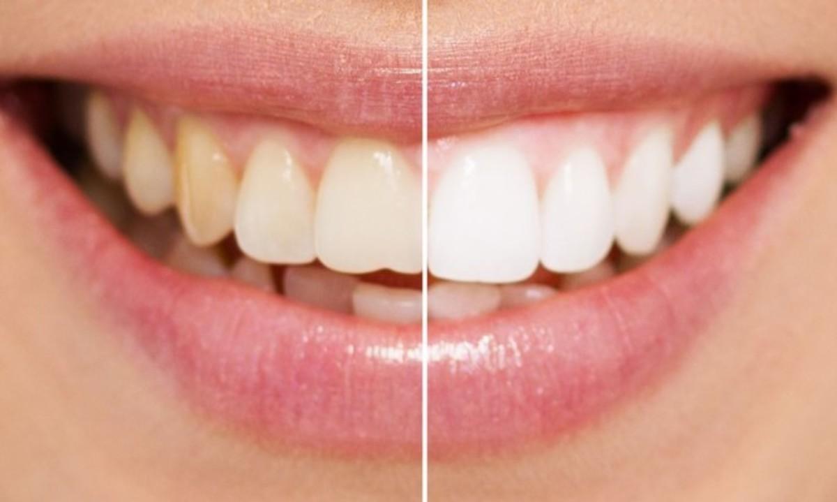 Πιο λευκά δόντια: Κάντε μπουκώματα με αυτό το φυσικό διάλυμα [vid] | Newsit.gr