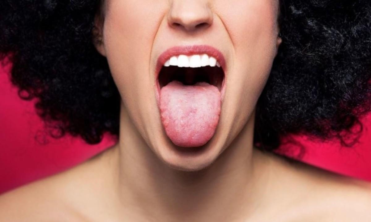 Πρησμένη γλώσσα: Προσοχή στα πιθανά σοβαρά αίτια! | Newsit.gr