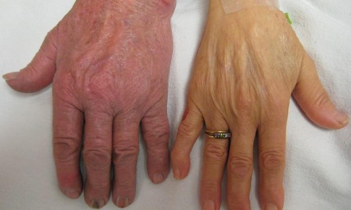 Σιδηροπενική αναιμία: Αυτά είναι τα πρώιμα συμπτώματα | Newsit.gr
