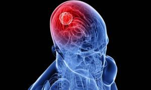Όγκος στο κεφάλι: Πώς θα τον καταλάβετε – Ποιοι κινδυνεύουν [vid]