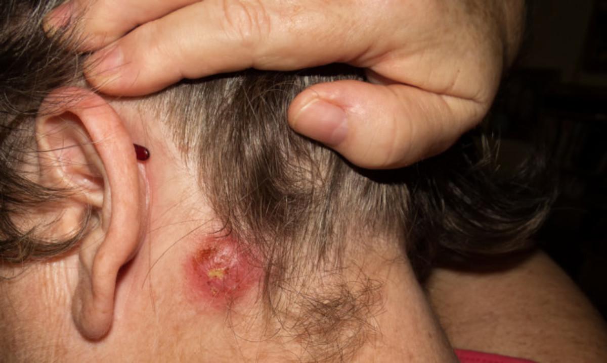 Σταφυλόκοκκος: Εικόνες, συμπτώματα, αίτια, θεραπεία και πρόληψη | Newsit.gr