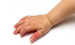 Ιός Κοξάκι: Πώς θα τον εντοπίσετε εγκαίρως στο παιδί