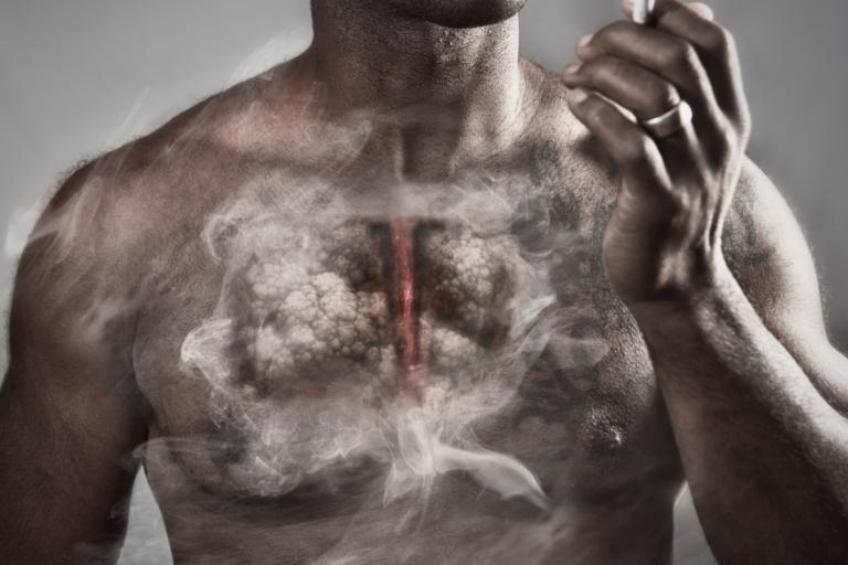 Κάπνισμα: Όποιος βλέπει αυτό το 6 δευτερολέπτων βίντεο, κόβει επιτόπου το τσιγάρο… [vid] | Newsit.gr
