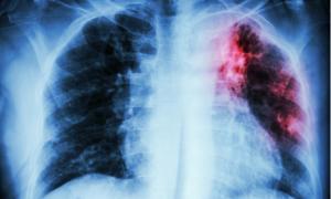Παγκόσμια Ημέρα Φυματίωσης: Πώς εκδηλώνεται η φυματίωση – Ο #1 μολυσματικός «δολοφόνος» παγκοσμίως