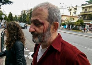 Επίθεση σε μέλη του ΚΕΕΡΦΑ στις παρελάσεις σε Καλλιθέα και Γαλάτσι [pics]