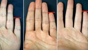 Τι σημαίνει το μικρό δάχτυλο για την προσωπικότητά σας