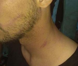 Πιερία: Θλιβερά επεισόδια στο Αιγίνιο – Πλάκωσαν στο ξύλο την αποστολή της Σπάρτης στα αποδυτήρια [pic]