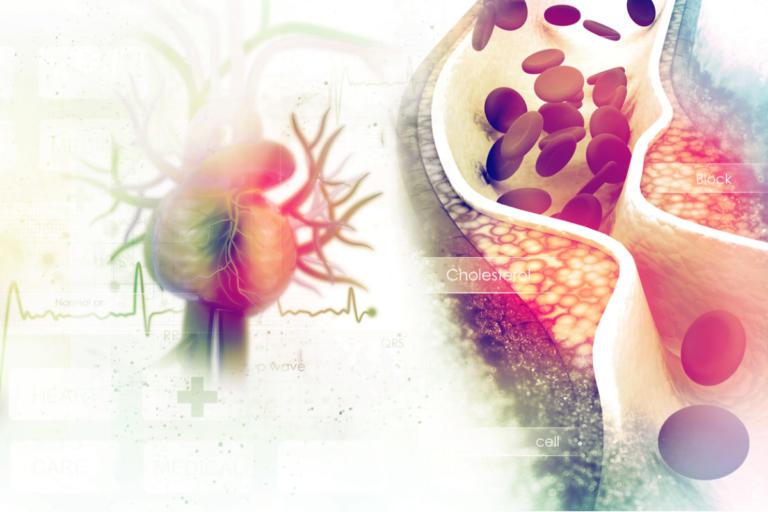 Χοληστερίνη και τριγλυκερίδια: Ποια είναι τα όρια – Υπολογισμός   Newsit.gr
