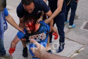 Μόνο ντροπή και οργή! Άνοιξαν κεφάλια σε αγώνα Γ' Εθνικής στα Σπάτα [pics, vid]