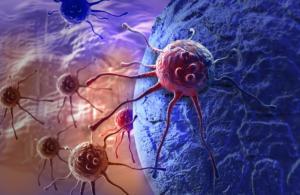 Καρκίνος του παχέος εντέρου – Συμπτώματα: 1 στους 4 τα μπερδεύει με αυτό! [vid]