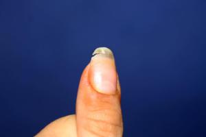 Τι να κάνετε αν σπάσει το νύχι σας