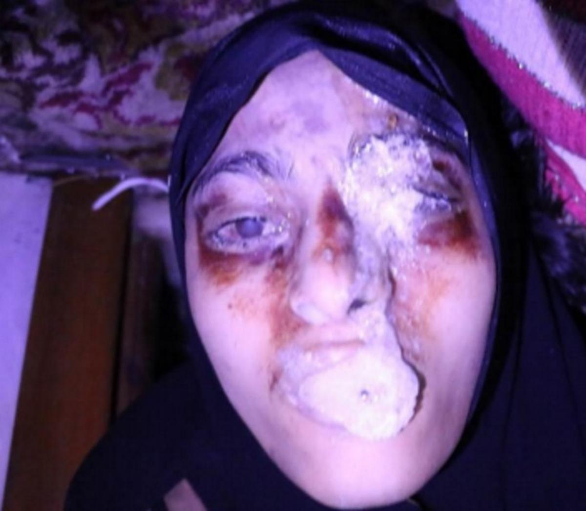 Συρία χημικά