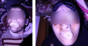 Εικόνες φρίκης! Η Γαλλία δημοσιεύει αποδείξεις (;) για επίθεση με χημικά στην Συρία! Σκληρές εικόνες