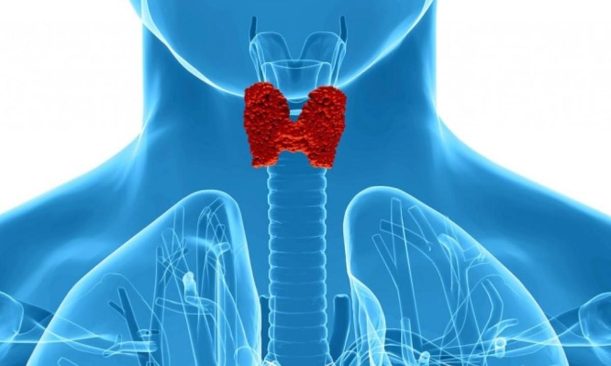 Υποθυρεοειδισμός: Τα πρώιμα συμπτώματα που συνήθως αγνοούμε
