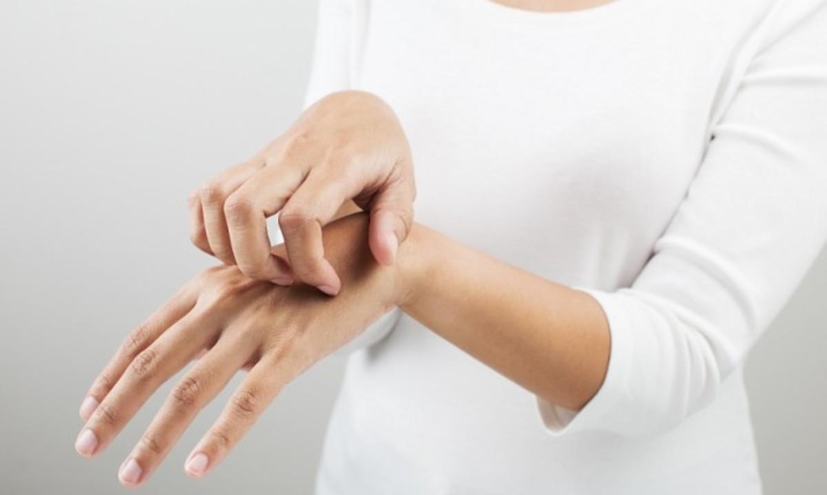 Δερματίτιδα εξ επαφής: Πώς θα προφυλαχθείτε | Newsit.gr