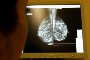 Σάλος στη Βρετανία! Από λάθος δεν κάλεσαν 450.000 γυναίκες να κάνουν μαστογραφία – 150.000 έχουν ήδη πεθάνει